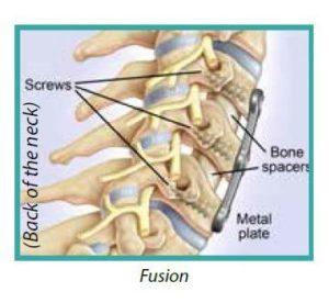 cervical fusion3